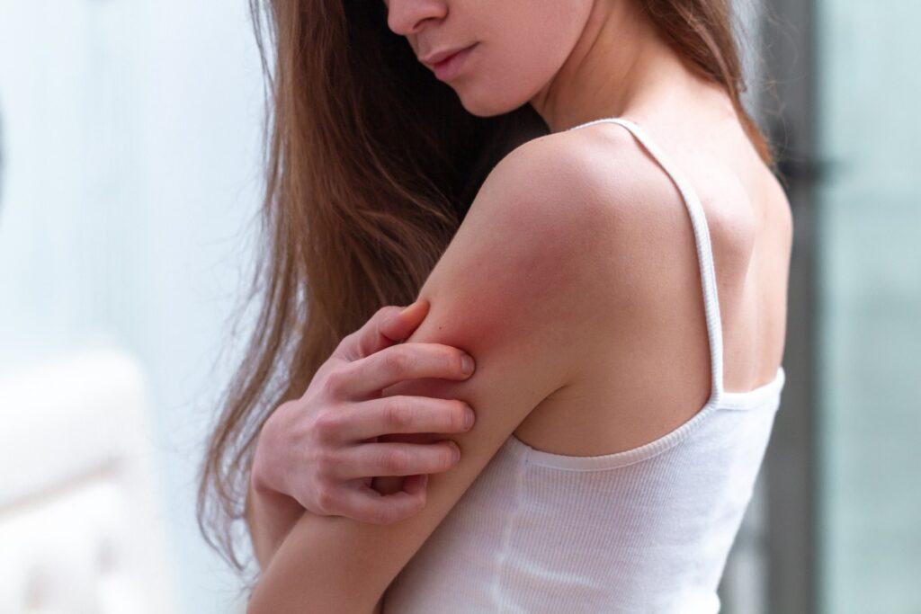 podrażniona skóra